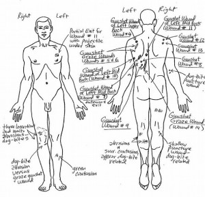 autopsy-drawing